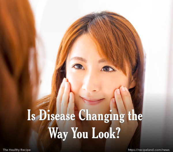 Is Disease Changing the Way You Look?